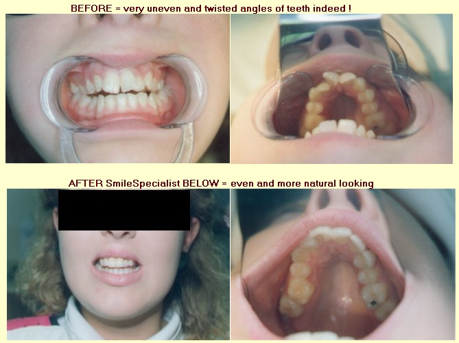 Very Twisted and uneven Teeth Cosmetically Improved by Dr.Kilcoyne in 2 weeks!