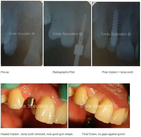 Shows series of before, during and after tooth implants placed near Leeds