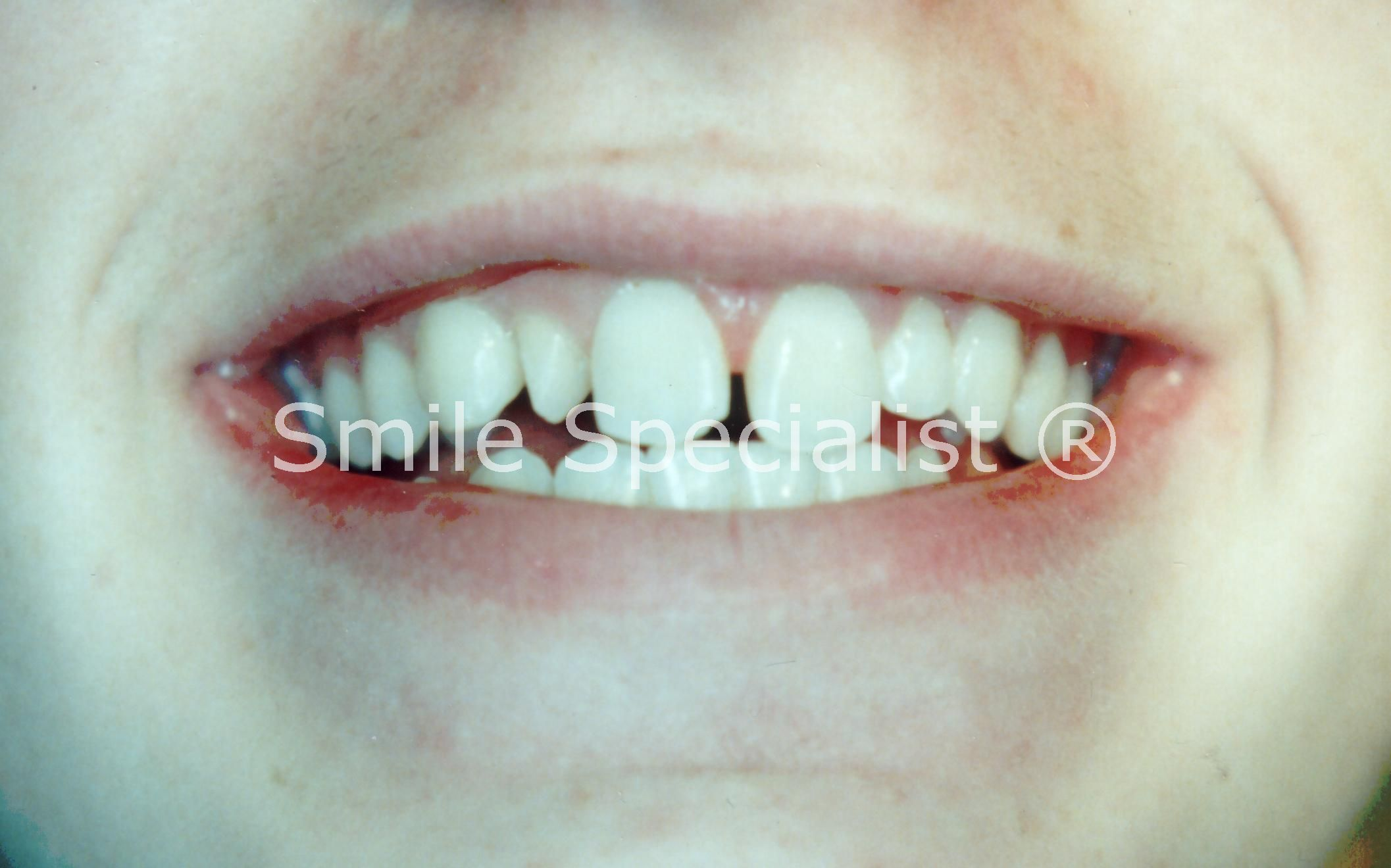 Smaller tooth Requires cosmetic Bonding