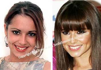 Before and After Cosmetic Dentistry Cheryl Cole