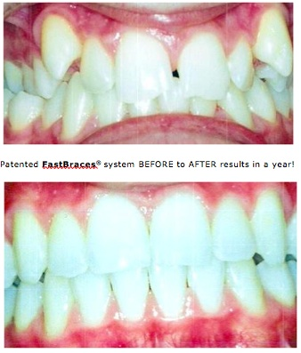 FastBraces complex case example too