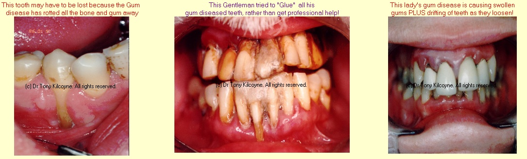 Gums problems, recession, lose teeth glued together and drifting teeth
