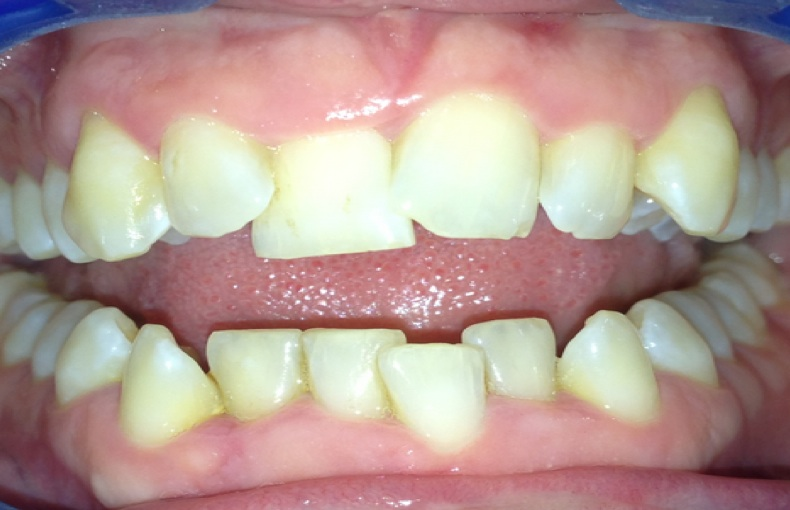 Crowded uneven teeth upper and lower teeth affected