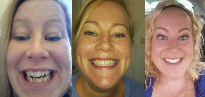 FastBraces unique system straightened these teeth in only months !!!