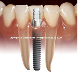 Implant between two natural teeth example.