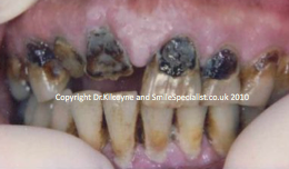 Extensive Decay that is rotting teeth away and unsightly