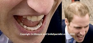 Prince William with his Ortho Brace retainer in place