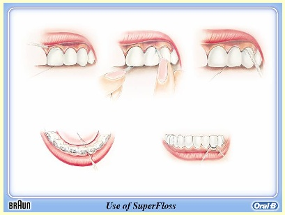SuperFloss goes underneath Bridges or Splinted teeth then moves horizontally