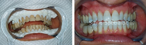 Dr.Kilcoyne's before and after Whitening for great results