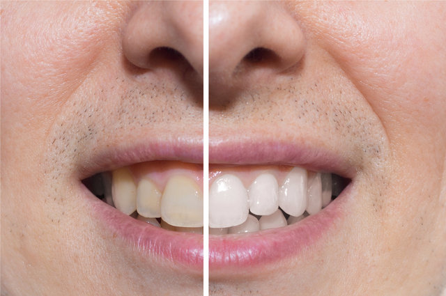 Whitening before and after. Image by Carlos Amarillo (via Shutterstock).