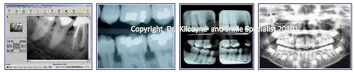 A variety of Digital and Film Xrays to view Dental Problems
